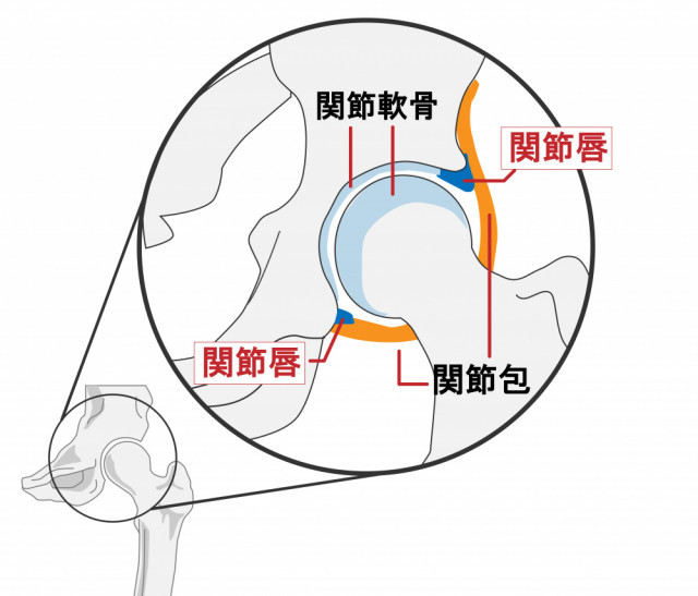 股関節の画像